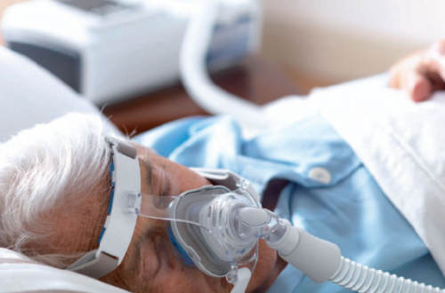Что такое CPAP
